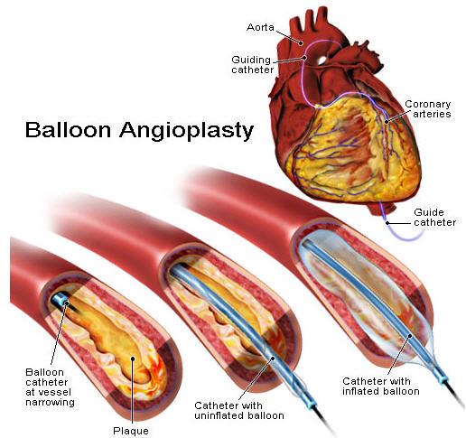 Angioplasty2