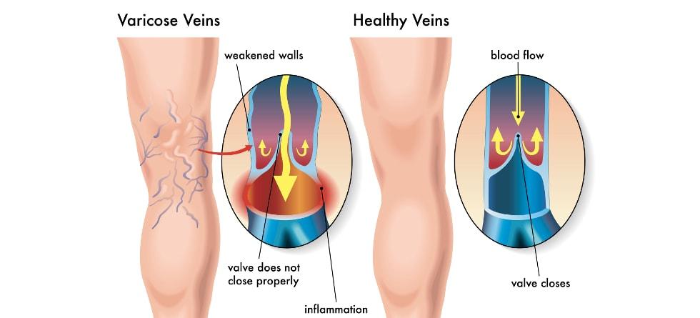 Venous Ablation Clinic