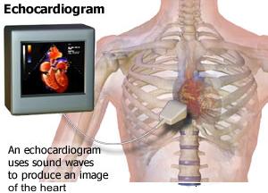 Echocardiogram Studies Hamilton Cardiology Associates